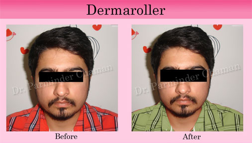 Best Cosmetic and Laser Treatment in Chandigarh