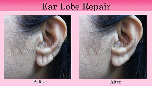Stichless Ear Lobe Repair Punjab